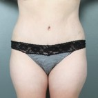 After Photo - Tummy Tuck - Case #11816 - Abdominoplasty - Frontal View