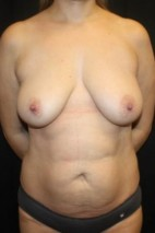 Before Photo - Mommy Makeover - Case #11834 - Mommy Makeover - 40 year old female. - Frontal View