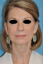 After Photo - Facelift - Case #11852 - Face and Neck Lift  - Frontal View