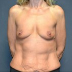 Before Photo - Breast Augmentation - Case #11900 - 49 Years Old Female  - Frontal View