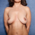 Before Photo - Breast Lift - Case #11912 - 38 Years Old Female - Frontal View