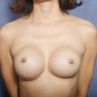 Before Photo - Breast Revision - Case #11914 - 31 Years Old Female  - Frontal View