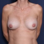 After Photo - Breast Revision - Case #11918 - 53 Years Old Female  - Frontal View