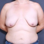 Before Photo - Breast Augmentation - Case #11919 - 34 Years Old Female - Frontal View