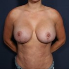 After Photo - Breast Augmentation - Case #11946 - 33 Years Old Female (Breast Augmentation with Lift) - Frontal View