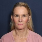 After Photo - Facelift - Case #11948 - 60 Years Old Female  - Frontal View