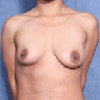 Before Photo - Breast Augmentation - Case #11955 - 27 Year Old Female (Breast Augmentation with Lift) - Frontal View