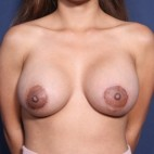 After Photo - Breast Augmentation - Case #11955 - 27 Year Old Female (Breast Augmentation with Lift) - Frontal View