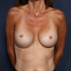 After Photo - Breast Revision - Case #12013 - 53 Year Old Female - Frontal View