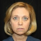 Before Photo - Facelift - Case #12015 - Facelift - 49 year old female. - Frontal View