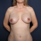 After Photo - Breast Augmentation - Case #13179 - 43 Years Old Female - Frontal View