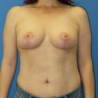 After Photo - Breast Lift - Case #13215 - Bilateral Mastopexy - Frontal View