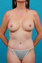 After Photo - Mommy Makeover - Case #13243 - Frontal View