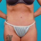 After Photo - Tummy Tuck - Case #13245 - Athletic Tummy Tuck - Frontal View