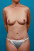 After Photo - Mommy Makeover - Case #13249 - Mommy Makeover: BL TT - Frontal View