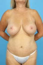 Before Photo - Mommy Makeover - Case #13253 - Revision Mommy Makeover - Frontal View