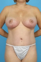 After Photo - Mommy Makeover - Case #13254 - Mommy Makeover: TT, BR, SAL - Frontal View