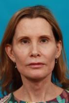 After Photo - Facial Rejuvenation - Case #13262 - Secondary Face / Neck Lift - Frontal View