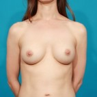 After Photo - Breast Augmentation - Case #13264 - Silicone Breast Augmentation - Frontal View