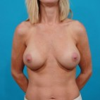 After Photo - Breast Augmentation - Case #13268 - Silicone Breast Augmentation - Frontal View