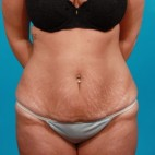 Before Photo - Tummy Tuck - Case #13273 - Abdominoplasty with Flank Lipo - Frontal View