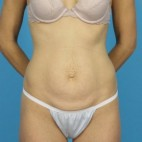 Before Photo - Tummy Tuck - Case #13275 - Abdominoplasty - Frontal View