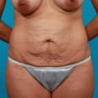 Before Photo - Tummy Tuck - Case #13276 - Abdominoplasty - Frontal View