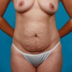 Before Photo - Tummy Tuck - Case #13280 - Abdominoplasty with Flank Lipo - Frontal View