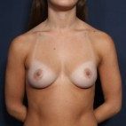 Before Photo - Breast Augmentation - Case #13284 - 21 Year Old Female - Frontal View