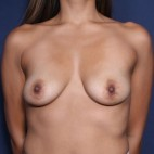 Before Photo - Breast Augmentation - Case #13313 - 33 Years Old Female - Frontal View