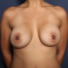 After Photo - Breast Augmentation - Case #13313 - 33 Years Old Female - Frontal View