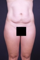 Before Photo - Tummy Tuck - Case #13333 - Abdominoplasty  - Frontal View