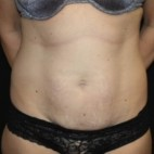 Before Photo - Tummy Tuck - Case #13364 - Abdominoplasty - 39 year old female - Frontal View