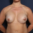 Before Photo - Breast Revision - Case #13377 - 41 Year Old Female - Frontal View