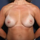 After Photo - Breast Revision - Case #13377 - 41 Year Old Female - Frontal View