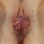 Before Photo - Vaginal Rejuvenation - Case #13396 - Labiaplasty - 41 year old female - Frontal View