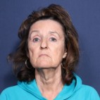 Before Photo - Facelift - Case #13402 - 65 Years Old Female - Frontal View
