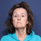 Before Photo - Neck Lift - Case #13403 - 65 Year Old Female - Frontal View