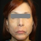 After Photo - Facial Rejuvenation - Case #13406 - Facelift/Facial Rejuvenation - 54 year old female - Frontal View