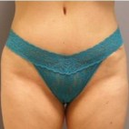 After Photo - Tummy Tuck - Case #13422 - mini abdominoplasty  - Frontal View
