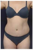 After Photo - Tummy Tuck - Case #13457 - Abdominoplasty - Frontal View