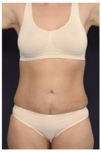 After Photo - Tummy Tuck - Case #13460 - Abdominoplasty - Frontal View