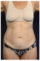 Before Photo - Tummy Tuck - Case #13462 - Abdominoplasty - Frontal View