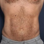 After Photo - Liposuction - Case #13504 - 39 Year Old Male  - Frontal View