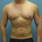 After Photo - Liposuction - Case #13484 - Power-Assisted and Laser-Assisted Lipoplasty (Smartlipo) Abdomen, Hips and Flanks - Frontal View