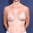 Before Photo - Breast Revision - Case #13596 - 50 Year old female  - Frontal View