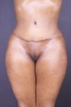 After Photo - Tummy Tuck - Case #13678 - Abdominoplasty - Frontal View