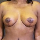 After Photo - Breast Lift - Case #13679 - Vertical Mastopexy - Frontal View