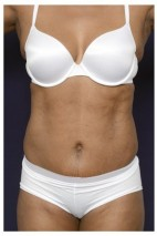 After Photo - Liposuction - Case #13703 - Frontal View