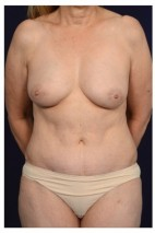 After Photo - Mommy Makeover - Case #13705 - Frontal View